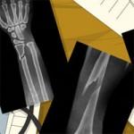 Игра Больница: Перелом руки